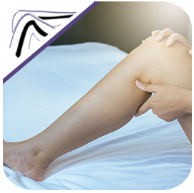 Edema (Leg Swelling) - Colorado Laser & Vein Centennial, CO